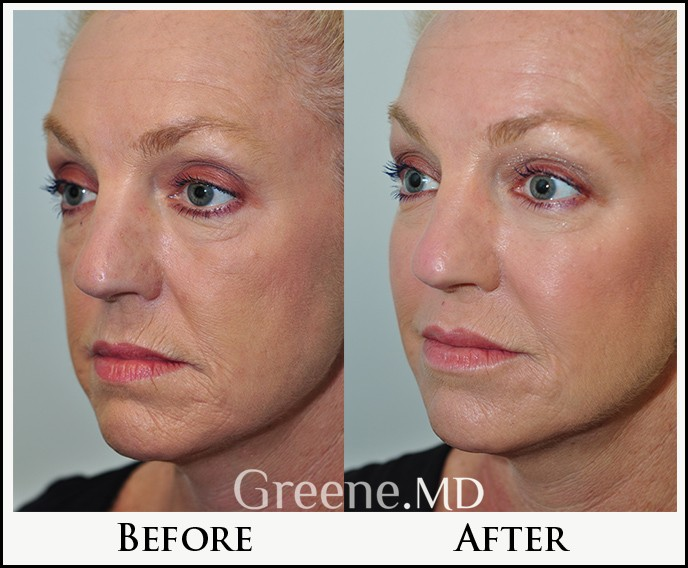 Juvederm Voluma Filler Expert Fort Lauderdale Weston Miami