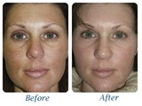 pic-laser-before-after2