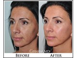 Juvederm VOLUMA XC Before and After Photo