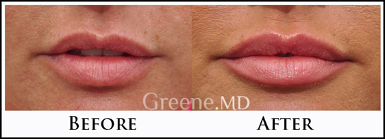 Lips by Greene