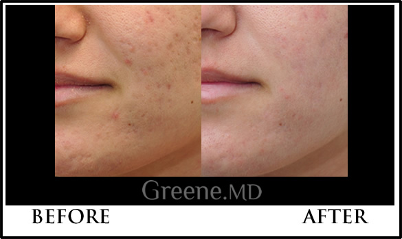 Acne Scarring Treatment Weston