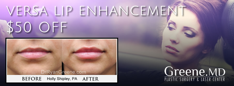 Versa Lip Enhancement Specials Weston