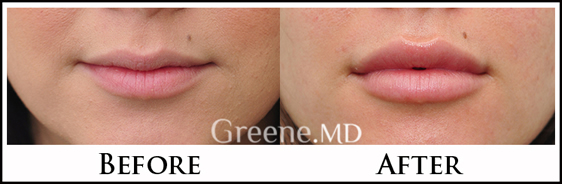 Lip Augmentation by Dr. Greene