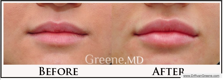Lip Injections by Dr. Ryan Greene