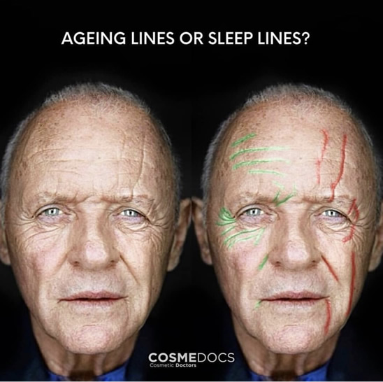 Aging Lines Vs Sleeping Lines Weston Fort Lauderdale Miami Botox Experts Explain