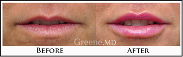 Lip Augmentation Fort Lauderdale