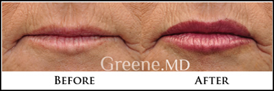 Lip Augmentatoin Fort Lauderdale, Weston Florida