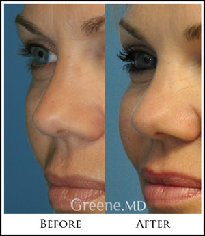 Radiesse Filler Expert in Fort Lauderdale and Weston * Dr