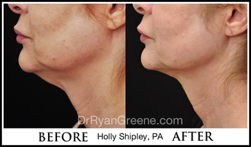 Kybella Gallery By Holly