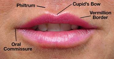 Lip Augmentation diagram Dr. Ryan Greene Weston, Florida