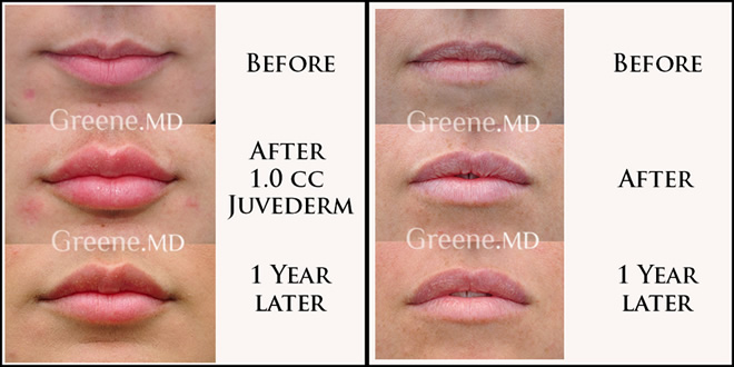 Lip Augmentation 1 Year Later Results Dr. Ryan Greene