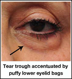 Under Eye Tear Trough Filler Treatment Fort Lauderdale