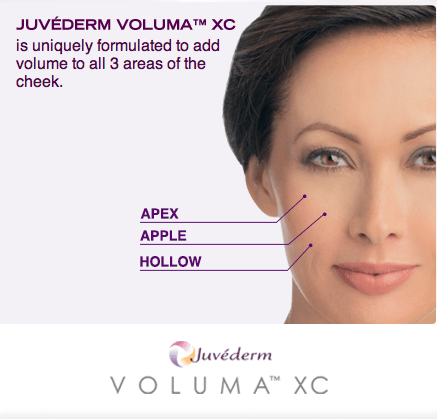 Voluma Facial Filler South Florida