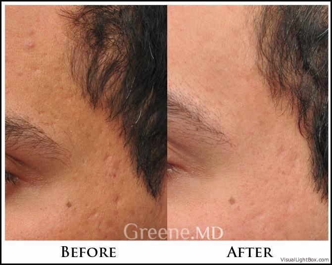 Acne Scar Treatment Options Weston Fort Lauderdale Miami
