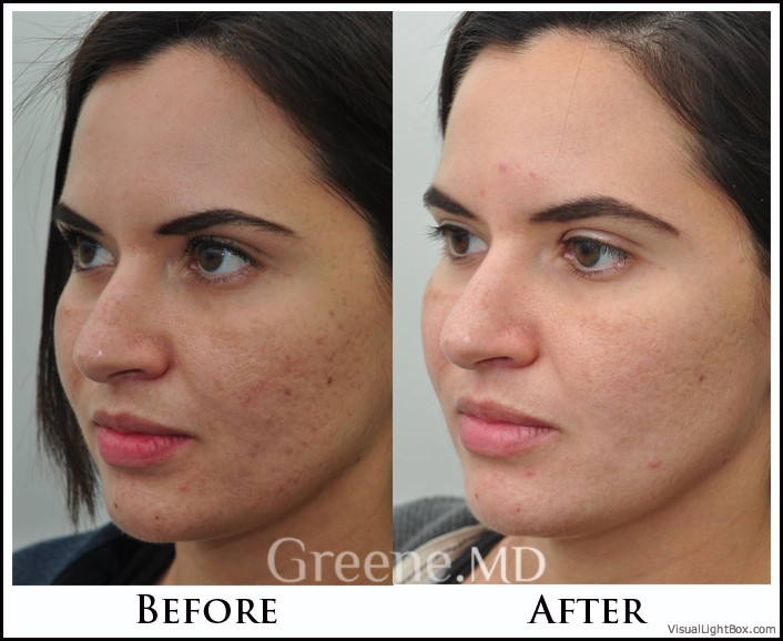 Acne Scar Treatment Options Weston Fort Lauderdale Miami