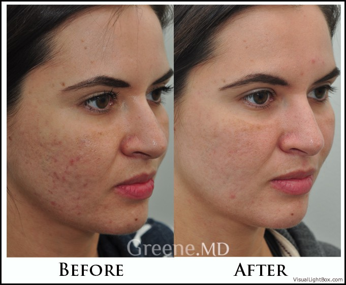 Acne Scar Treatment Options Weston Fort Lauderdale Miami Ablative And Non Ablative Lasers South Florida