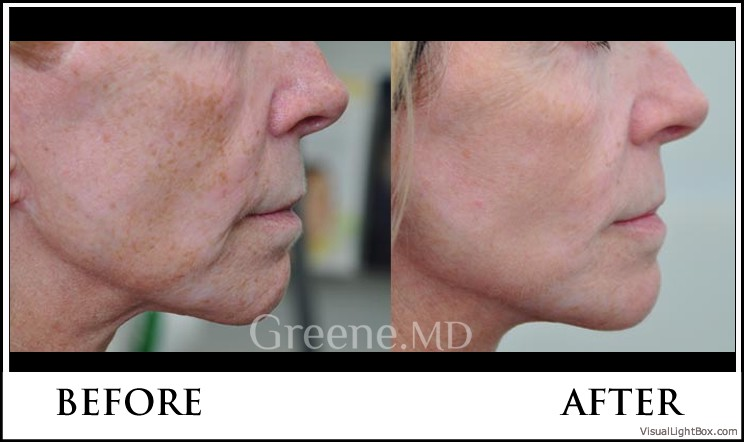 The World S Most Advanced Laser Facial Ipl Weston And Fort Lauderdale Intensed Pulsed Laser