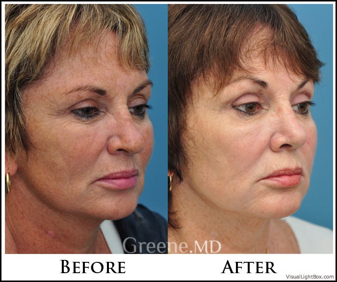 The World S Most Advanced Laser Facial Ipl Weston And Fort