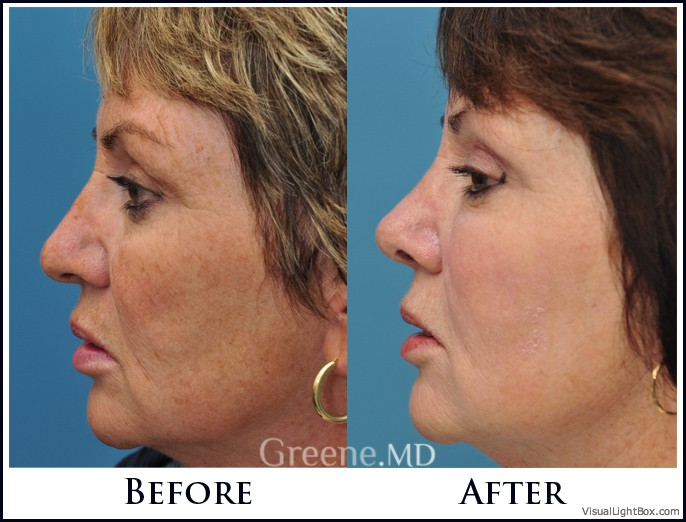 The World's Most Advanced Laser Facial IPL Weston and Fort