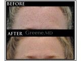 IPL Laser Photo Facial Before and After Photo