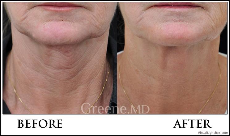 Видимо, крем действительно очень активный, улучшает кровообращение и состояние кожи в целом, она более упругая.